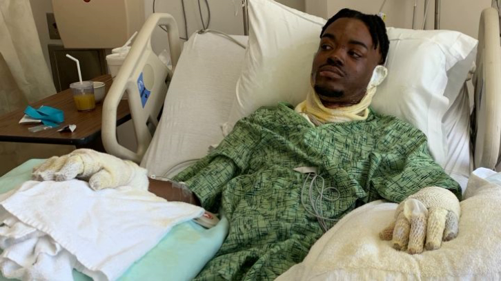 Henry Williams Jr. recovering in hospital after sustaining second- and third-degree burns